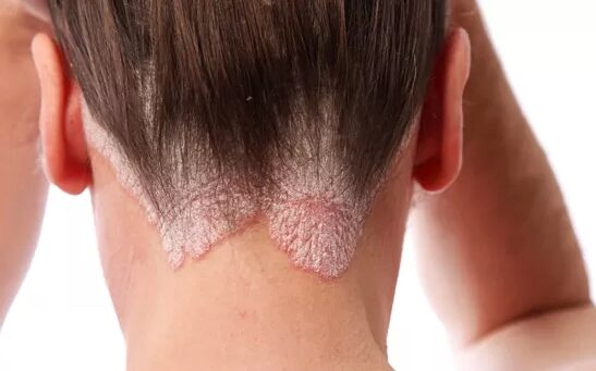 vörös pikkelyes foltok a haj alatti bőrön népi gyógymódok pikkelysömörre a testen a legjobbak
