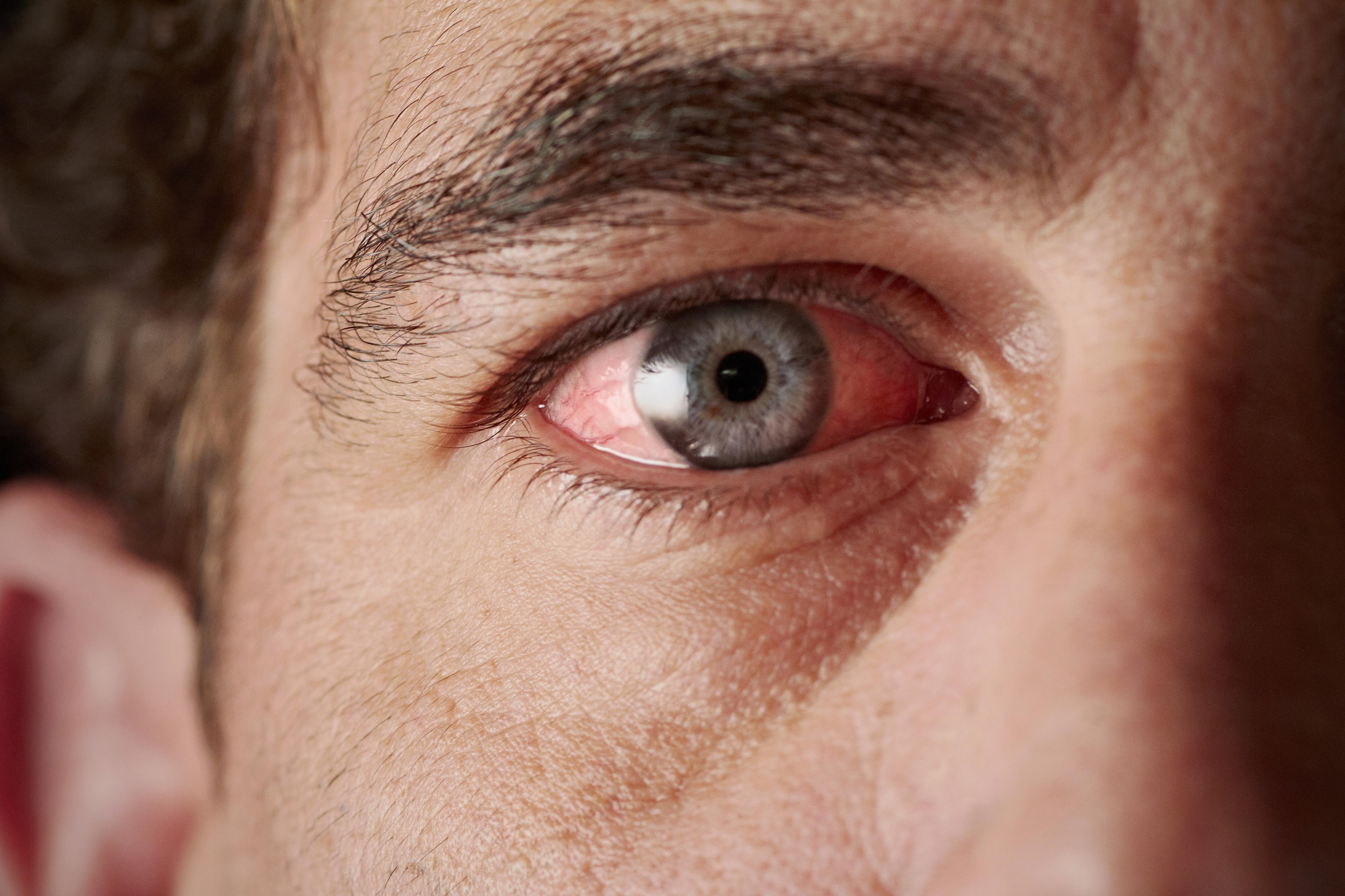 Vörös foltok a szeméremrészen a férfiak fotóján, hogyan kell kezelni