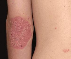 pikkelysömör dió kezelés buy lotion for pikkelysömör tiszta test