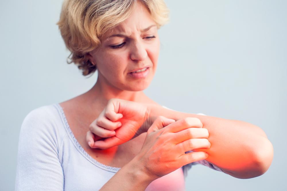 kiütés az arcon vörös foltok formájában, viszketés nélkül felnőtteknél hogyan lehet megszabadulni a vörös foltoktól a varikózisos lábakon