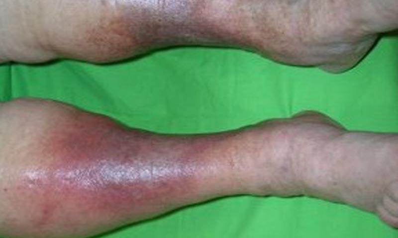 piros foltokat küldjön a lábakra mi ez