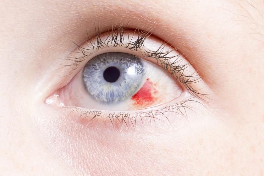 vörös foltok az idegeken fotótünetek és kezelés