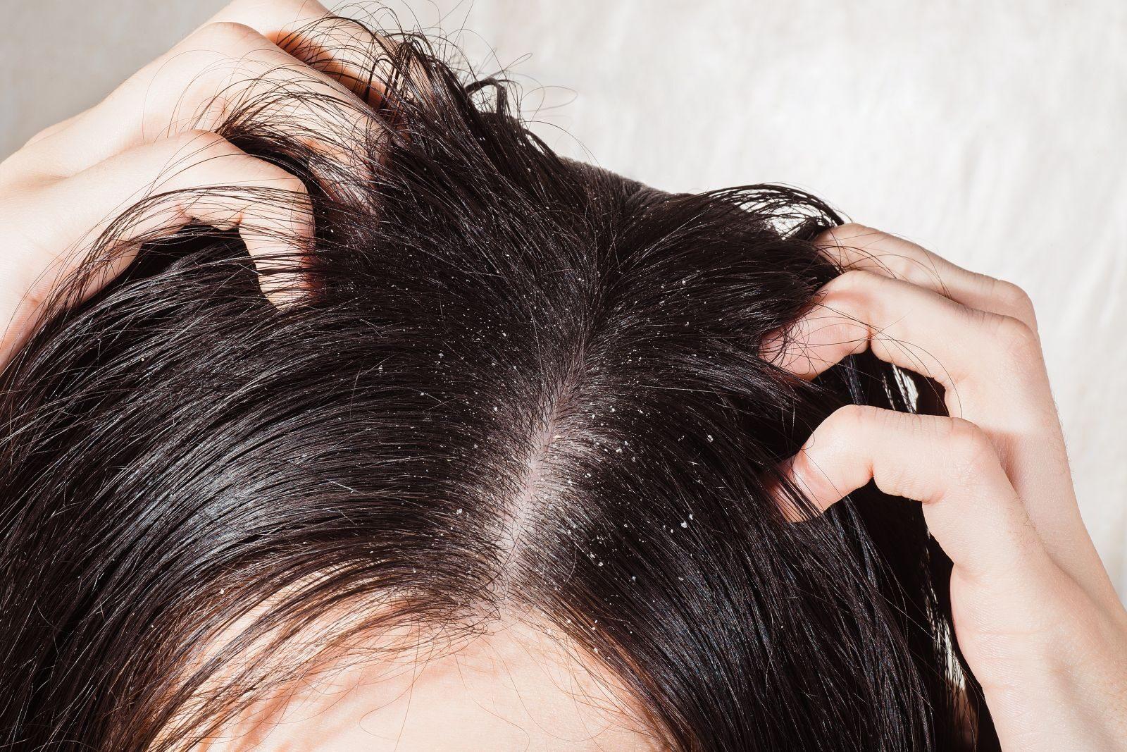 vörös foltok a fejbőr haján hullanak