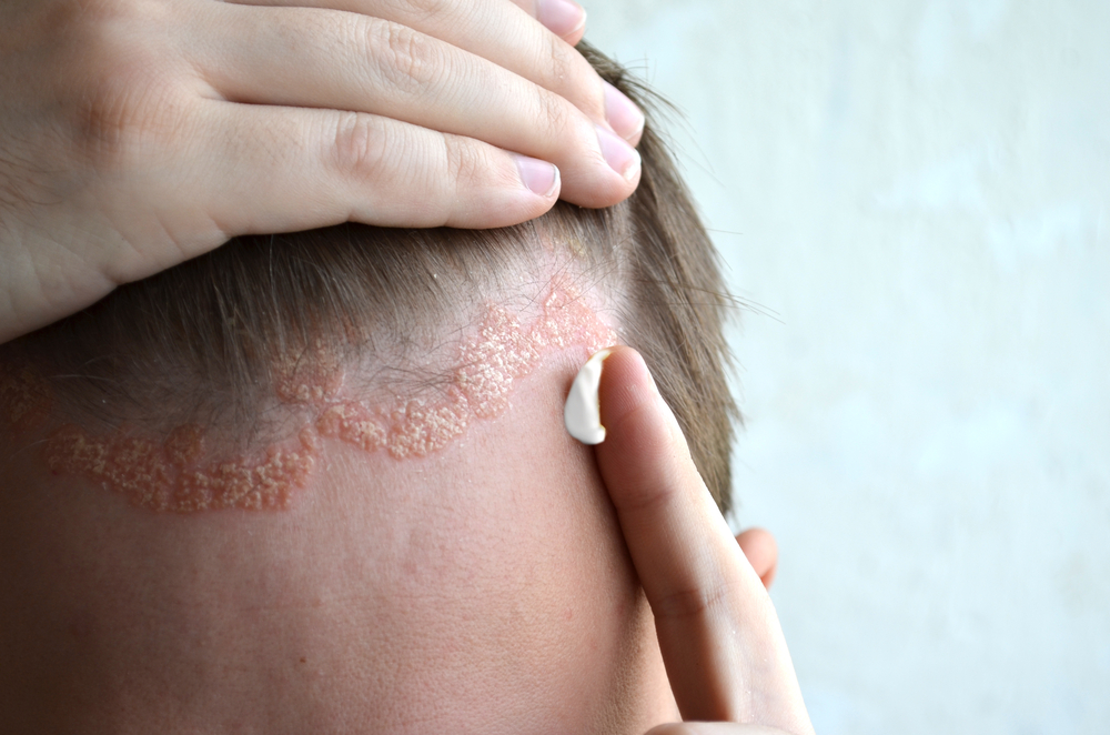 pikkelysömör kezelése szódával belsejében hogyan lehet eltávolítani a vörös foltokat a bőrkeményedés után