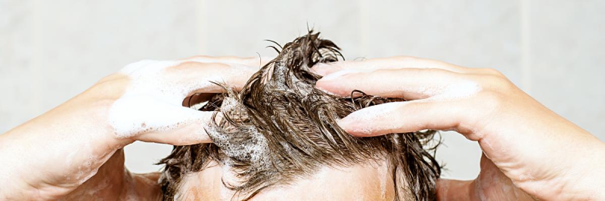 hogyan lehet a fejbőr pikkelysömörét otthon gyógyítani