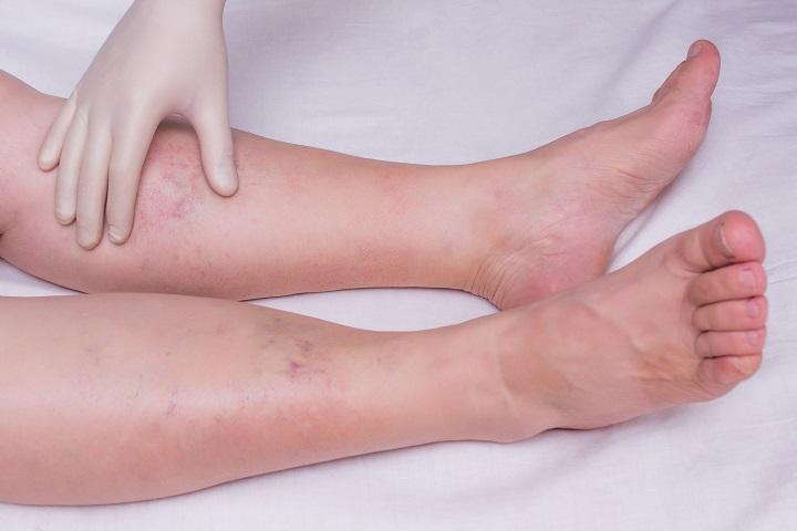 viszkető vörös foltok a lábujjak között