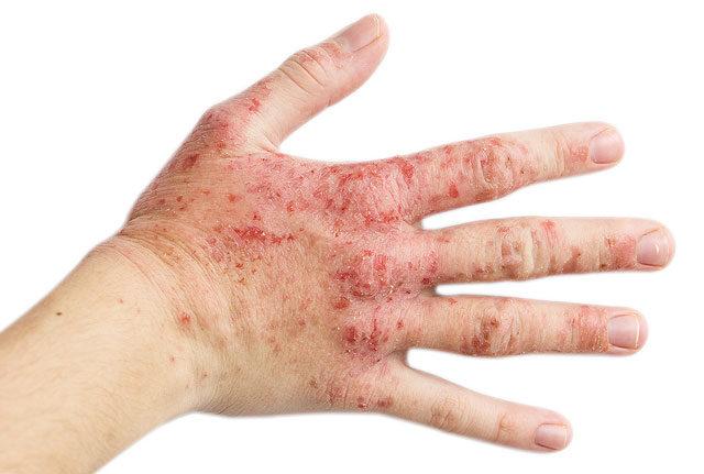 vörös foltok a kezeken, lábakon és szájon pikkelysömör idegkezels