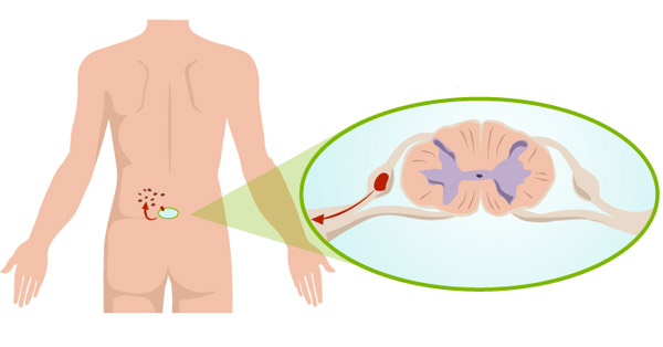 alternatív alternatív kezelés pikkelysömör módszerei vörös foltok az arcon a szárazságtól