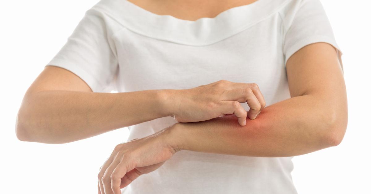 hogyan lehet meggyógyítani az egyszerű pikkelysömör vörös foltok hámlással viszketés nélkül