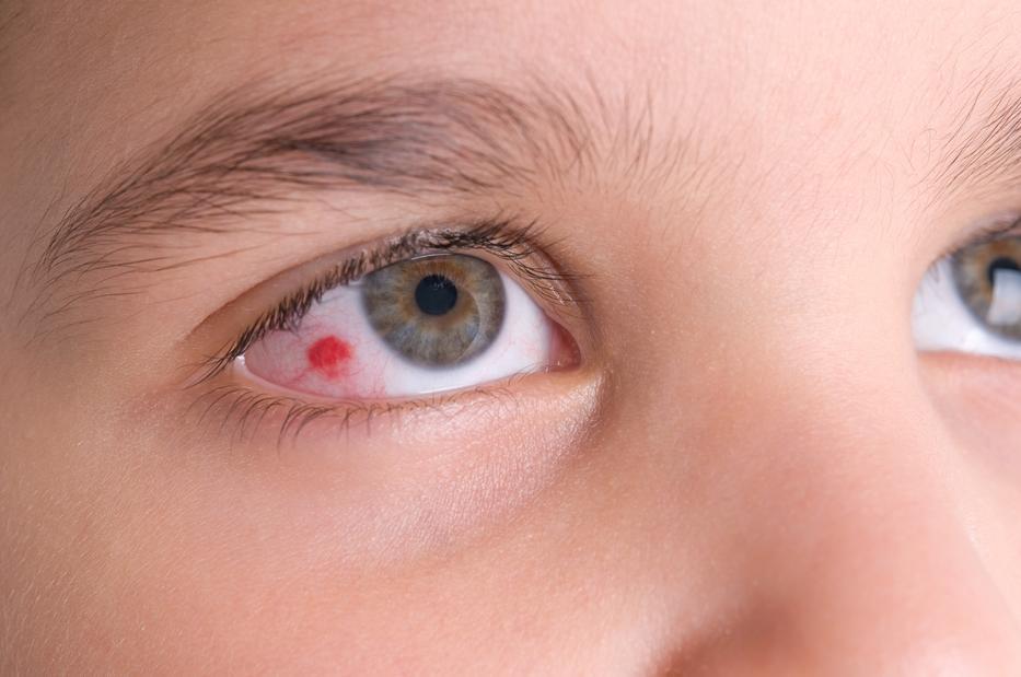 a szem alatt a vörös folt leválik, mint elkenődik galavitis a pikkelysmr kezelsben