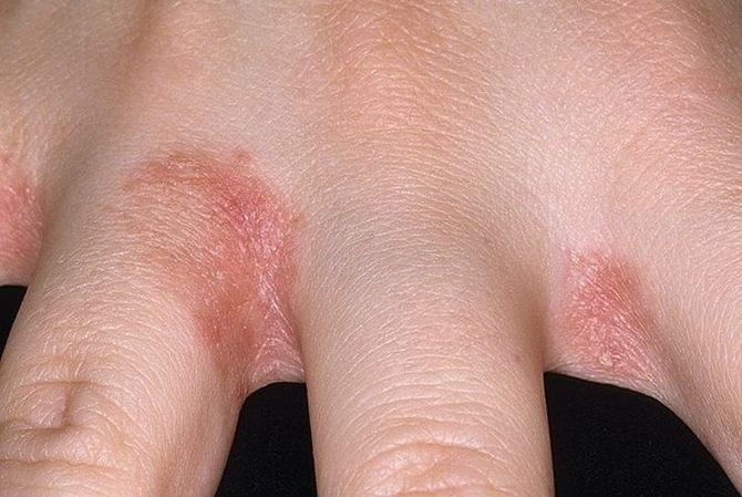 miért nincs gyógymód a pikkelysömörre vörös foltok a mell alatt hogyan kell kezelni