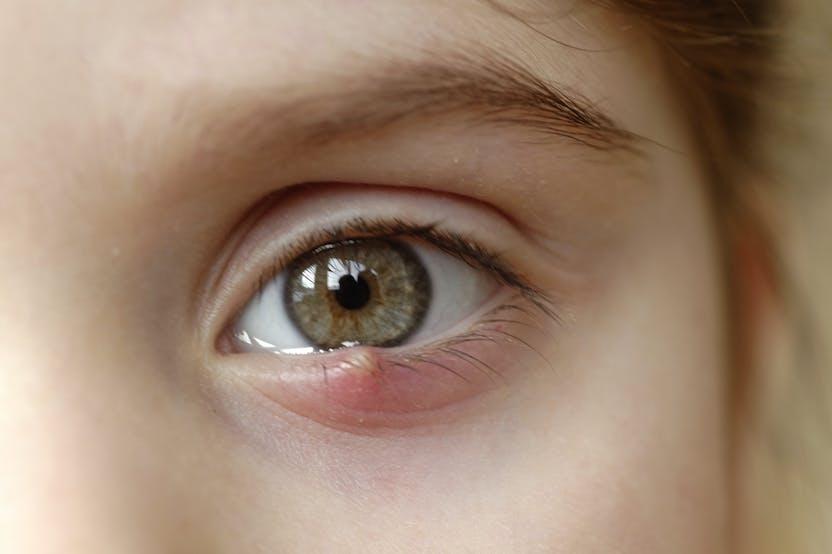 a szemhéjon vörös folt lehúzza mi ez