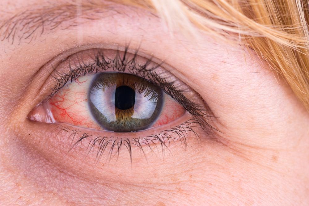 a szem körül vörös foltok hámlanak le