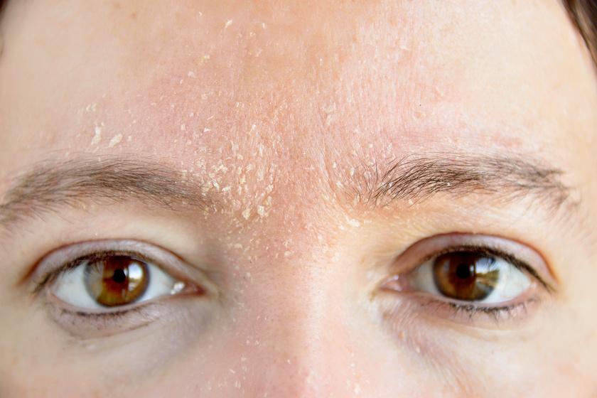 a szem alatti arcon egy vörös folt hámlik le pikkelysömör kezelése wanga módszerrel.