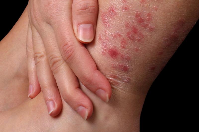 pikkelysömör tünetei és kezelési áttekintés