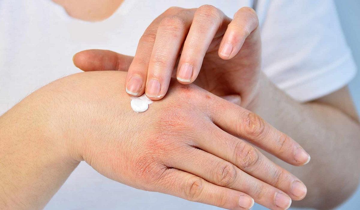 pikkelysömör dió kezelés skin relief pikkelysömör krém