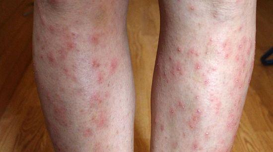 Piros foltokkal borított lábak - Bőrgyulladás