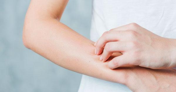 vörös folt a kéz bőrén viszket