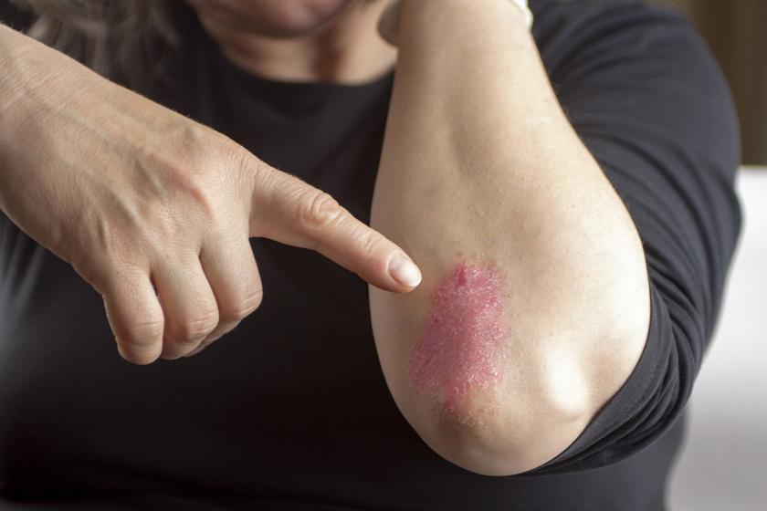 gyógynövények a pikkelysömör kezelésében vörös foltok kezelése a kéz bőrén