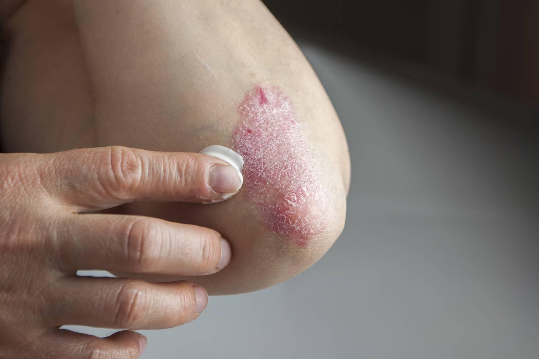 hogyan lehet eltávolítani a lábán egy piros foltot