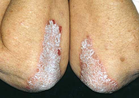 kenőcs pikkelysömör ekcéma dermatitis