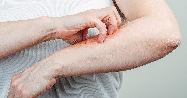 pikkelysömör a fejn. hatékony kezelés