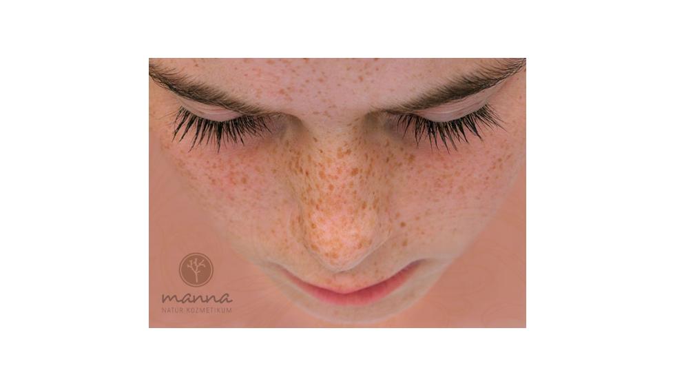 hogyan lehet eltávolítani az arcon lévő vörös foltokat a könnyektől india pikkelysömör kezelése