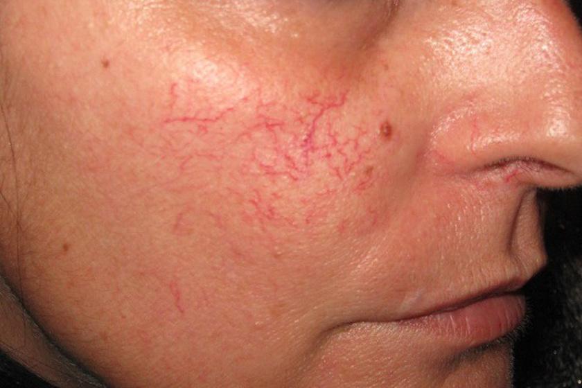 hogyan lehet eltávolítani egy vörös foltot az arcon