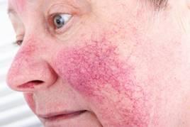 irritáció az arcon az orr körül vörös foltok formájában vörös sima foltok a bőrön viszketnek