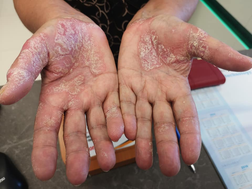 vörös foltok jelentek meg a kezeken, mint a csalánkiütés