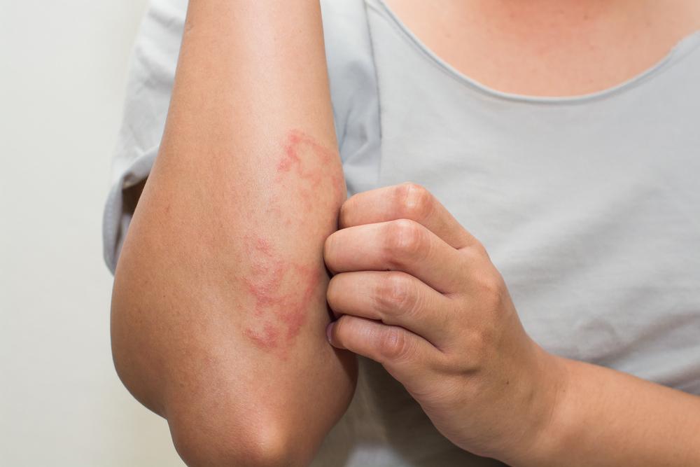 laennec pikkelysömör kezelése természetes gyógymód a pikkelysmr ellen