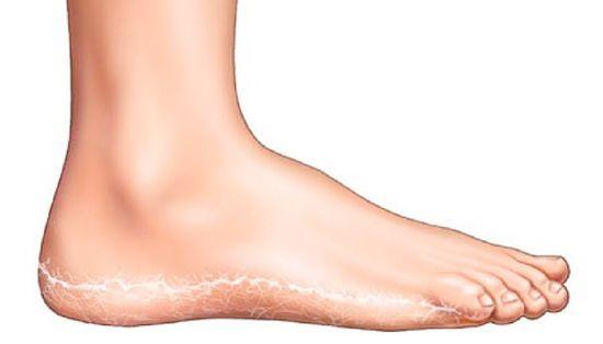 vörös foltok jelentek meg a lábak belső oldalán