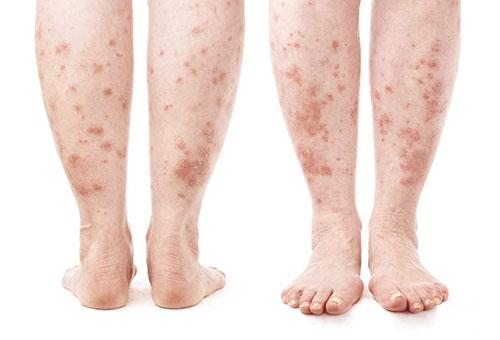 vörös foltok kezdtek megjelenni a lábakon